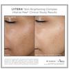 SkinMedica LYTERA Skin Brightening Complex: Image 2