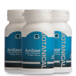 AcnEase Mild Acne Treatment - 3 flasker
