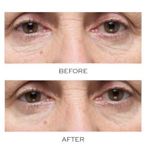 Elemis Pro-Collagen Hydra-Gel Eye Mask (Pack of 6): Image 3