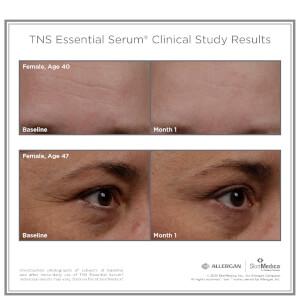 SkinMedica TNS Essential Serum: Image 3