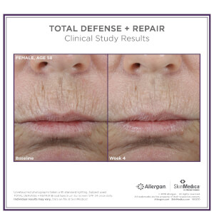 SkinMedica Total Defense and Repair SPF 50: Image 3