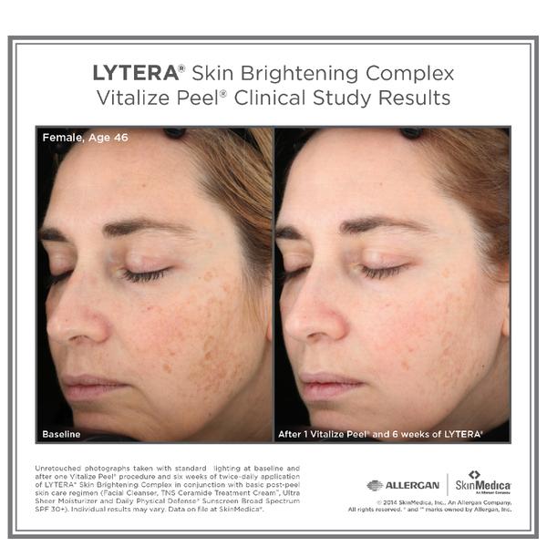 Skinmedica Lytera Skin Brightening Complex Skinstore