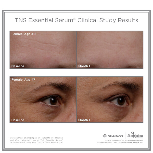 Skinmedica Tns Essential Serum Skinstore