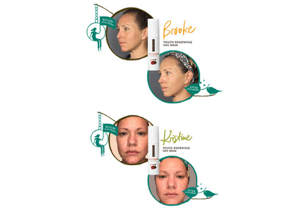 Before and After Youth Renewing Serum